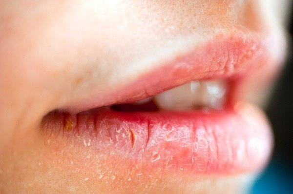 Decoloración de los labios