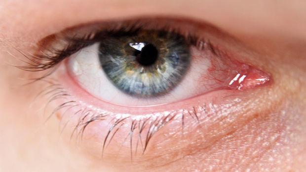 Dolor agudo en el ojo causas y opciones de tratamiento