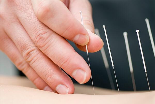 Dolor después del tratamiento de acupuntura