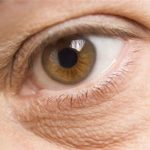 Eczema alrededor de los ojos causas y formas de tratamiento