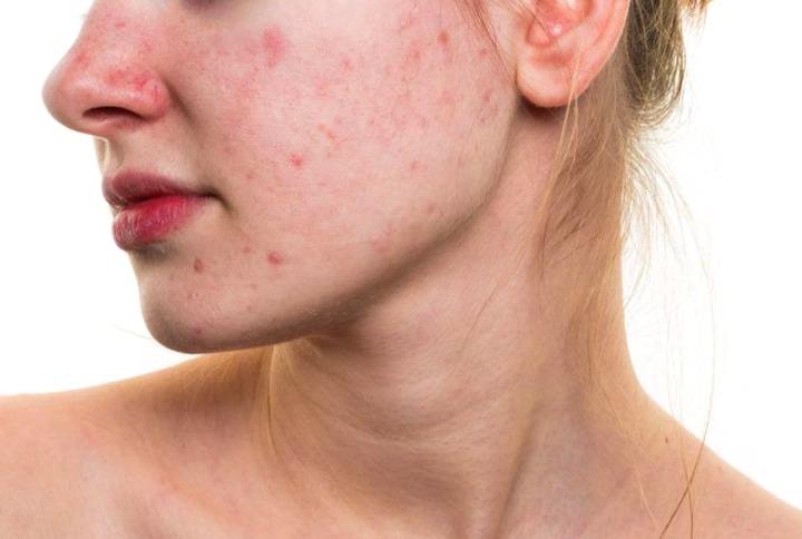 Enrojecimiento de la cara y la piel causas tratamiento y prevención