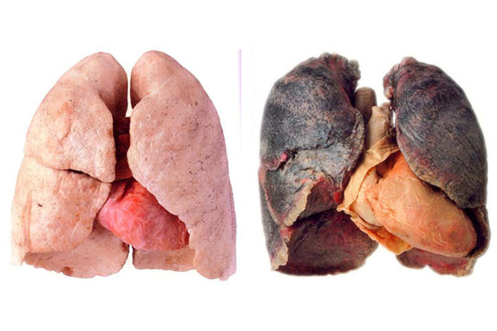 Etapas del cáncer de pulmón de células pequeñas
