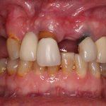 Goma hinchada alrededor del diente de la sabiduría