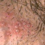 Herpes labial causas síntomas y tratamientos