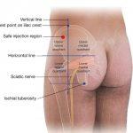 Iliac Crest Pain causas y remedios caseros