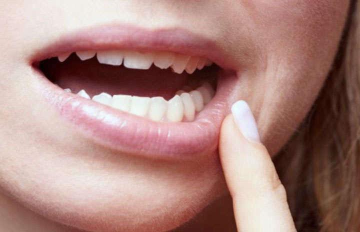 Infección en la encía después de la eliminación de los dientes