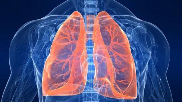 Neumonía causas síntomas y tratamiento