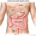 Obstrucción intestinal grande (obstrucción intestinal)