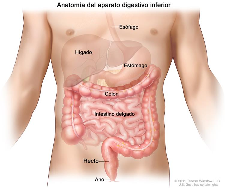 Obstrucción intestinal grande (obstrucción intestinal)