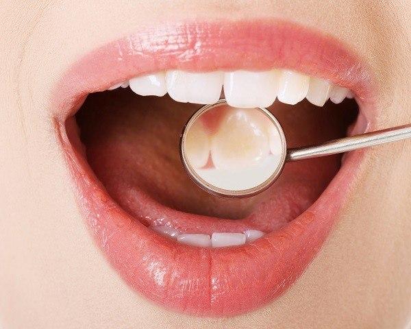 Por qué el techo de mi boca duele durante o después de comer