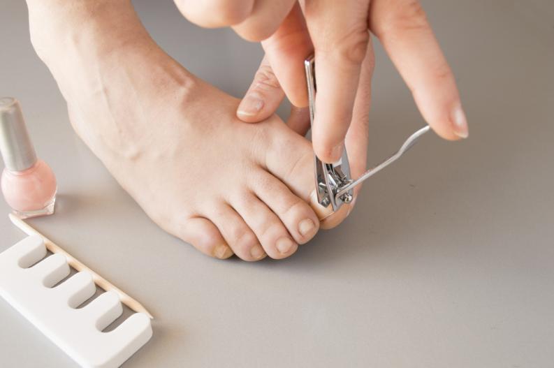 como ablandar las uñas de los pies