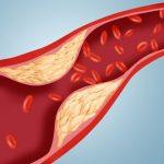 Prueba de nivel de colesterol de lipoproteína de muy baja densidad