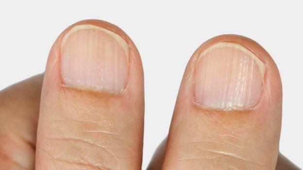 Prurito debajo y alrededor de las uñas