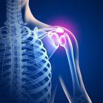 Puede el dolor óseo ser síntoma del cáncer de hueso