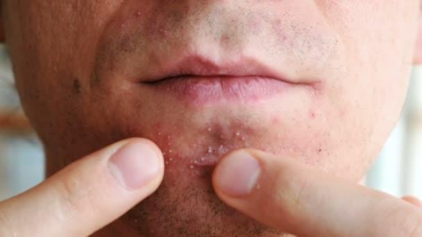 Qué causa la mucosidad negra en la nariz o las motas negras en la mucosa