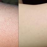 ¿Qué causa la piel de gallina en tu piel?