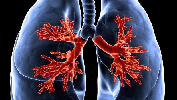 Qué es la expectativa de vida de la Fibrosis Quística
