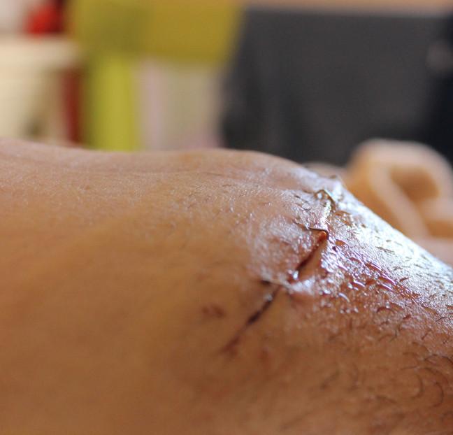 Signos de infección después de la cirugía