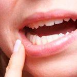 Techo de la boca hinchado: causas y tratamiento