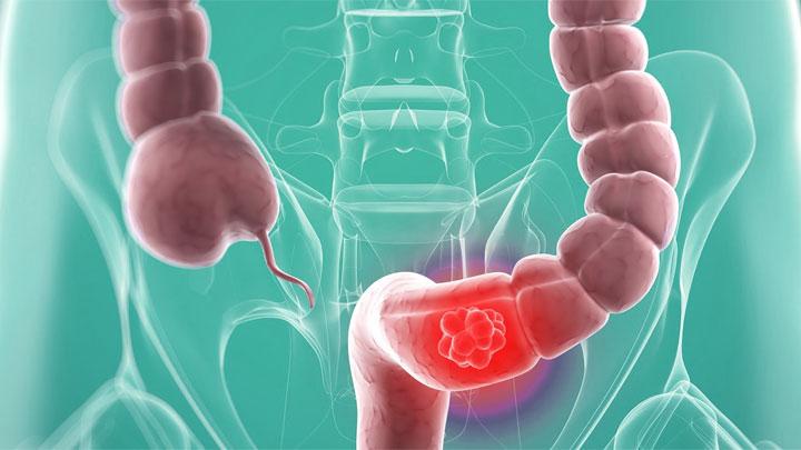 Una colonoscopia detecta el cáncer rectal