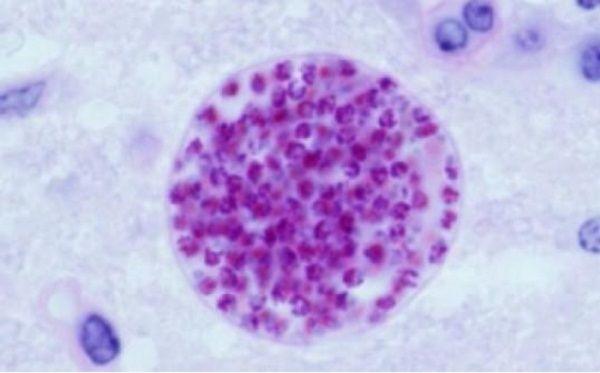balamuthia-mandrillaris-causas