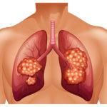 Cáncer de pulmón estadios tasas de supervivencia y pronóstico