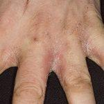 Candidiasis invasiva definición síntomas tratamiento