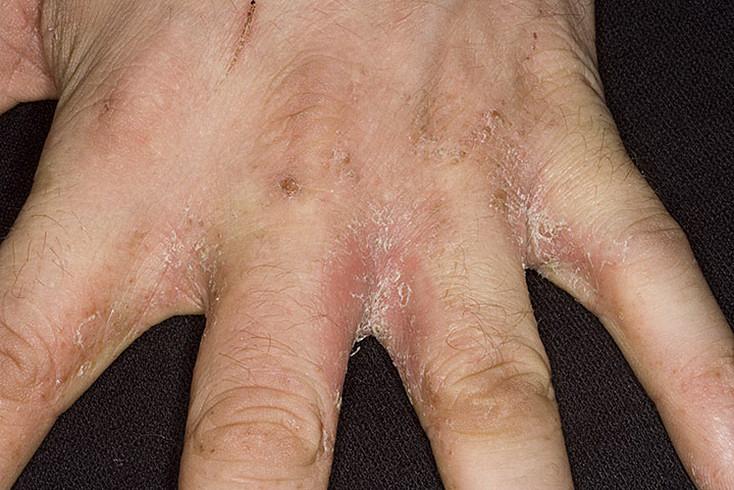 candidiasis-invasiva-definicion-sintomas-tratamiento