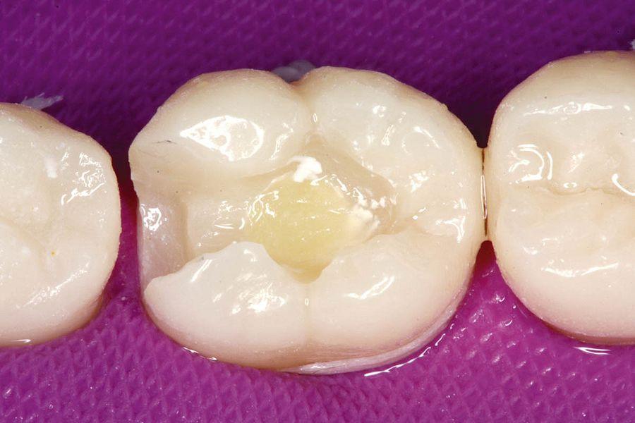 cavidad dental