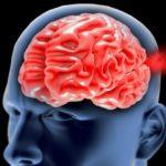 Pronóstico del aneurisma cerebral y tasa de supervivencia