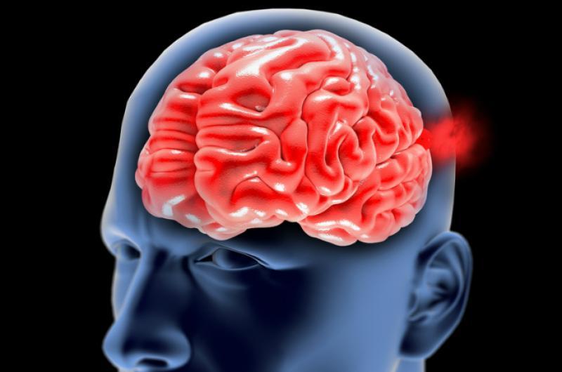 cerebro-aneurisma-pronostico-a-la-supervivencia-de-tasa