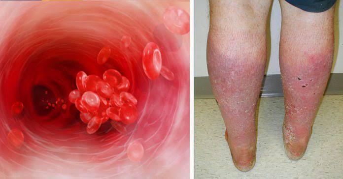 coágulos de sangre en la pierna