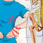 Cómo aliviar el dolor de la pierna de la ciática?