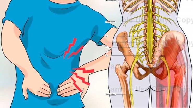 como-aliviar-el-dolor-de-la-pierna