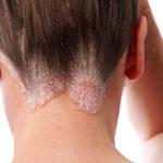 Bultos levantados en la piel tipos causas y tratamiento