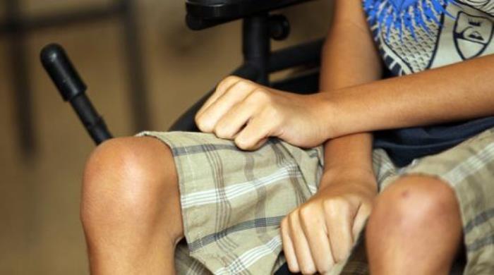 distrofia-muscular-en-adultos