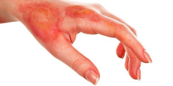 efectos-secundarios-del-procedimiento-de-quemaduras-nerviosas