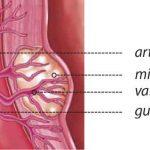 Embolización de la arteria uterina