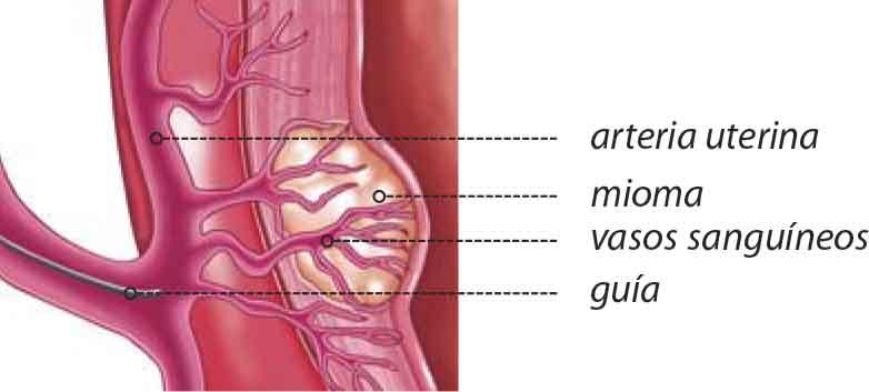 embolizacion-de-la-arteria-uterina
