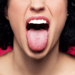 Bultos en la parte posterior de la lengua causas y remedios