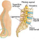 por-que-mi-columna-vertebral-se-rompe