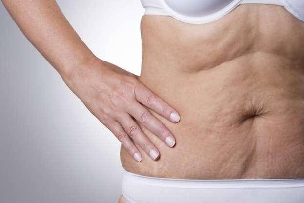 prevenir-la-perdida-de-peso-de-piel-suelta