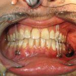 Cirugía de reducción abierta y fijación interna