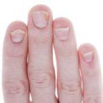 Sangre debajo de las uñas después de una lesión en el dedo gordo del pie