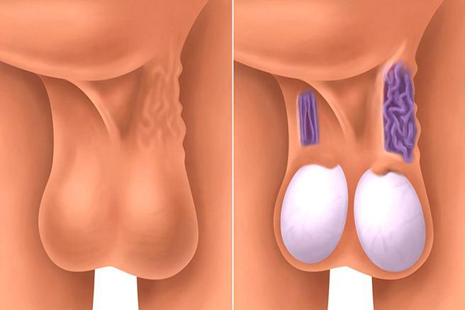 Causas comunes del escroto rojo