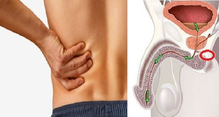 sintomas-del-cancer-de-prostata