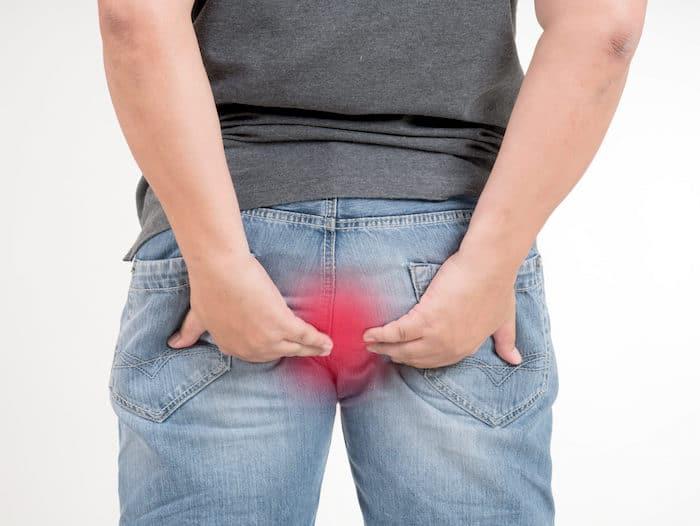 cirugia-de-dolor-hemorroides