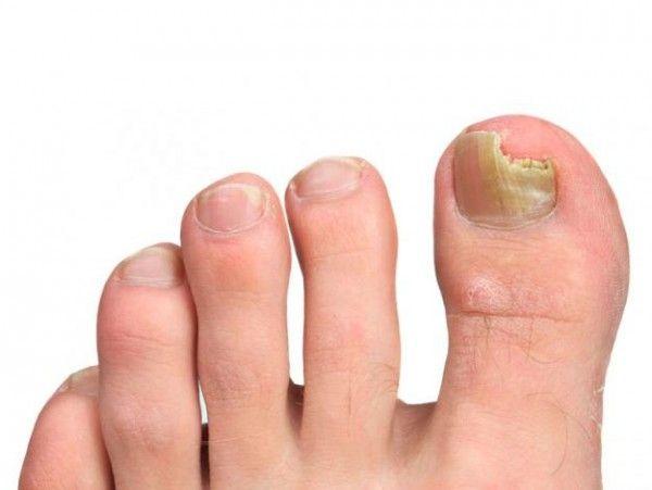 Los hongos del dedo del pie son contagiosos