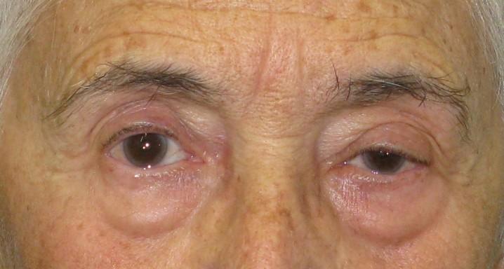Ptosis después del tratamiento de cirugía de cataratas