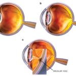 Síndrome de tracción vitreomacular